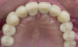 Tooth Replacement Bangalore