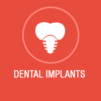 dental implants Bangalore, Dental Implant Surgery, Implant center in Bangalore, best dental implants in Bangalore, dental implants koramangala, Implant center in Koramangala, Implant Treatment Bangalore