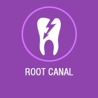 root canal treatment in Bangalore, endodontist in Bangalore, best root canal treatment in Bangalore