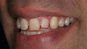 Cosmetic Dentistry in koramangala bangalore
