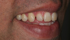 Cosmetic Dentistry in india