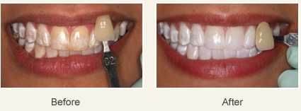 dental fluorosis treatment in Bangalore