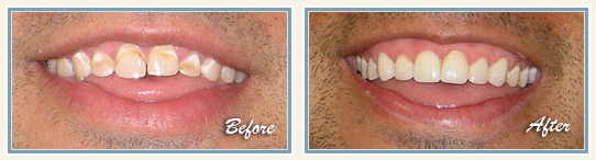 Micro abrasion & tooth bleaching in Bangalore